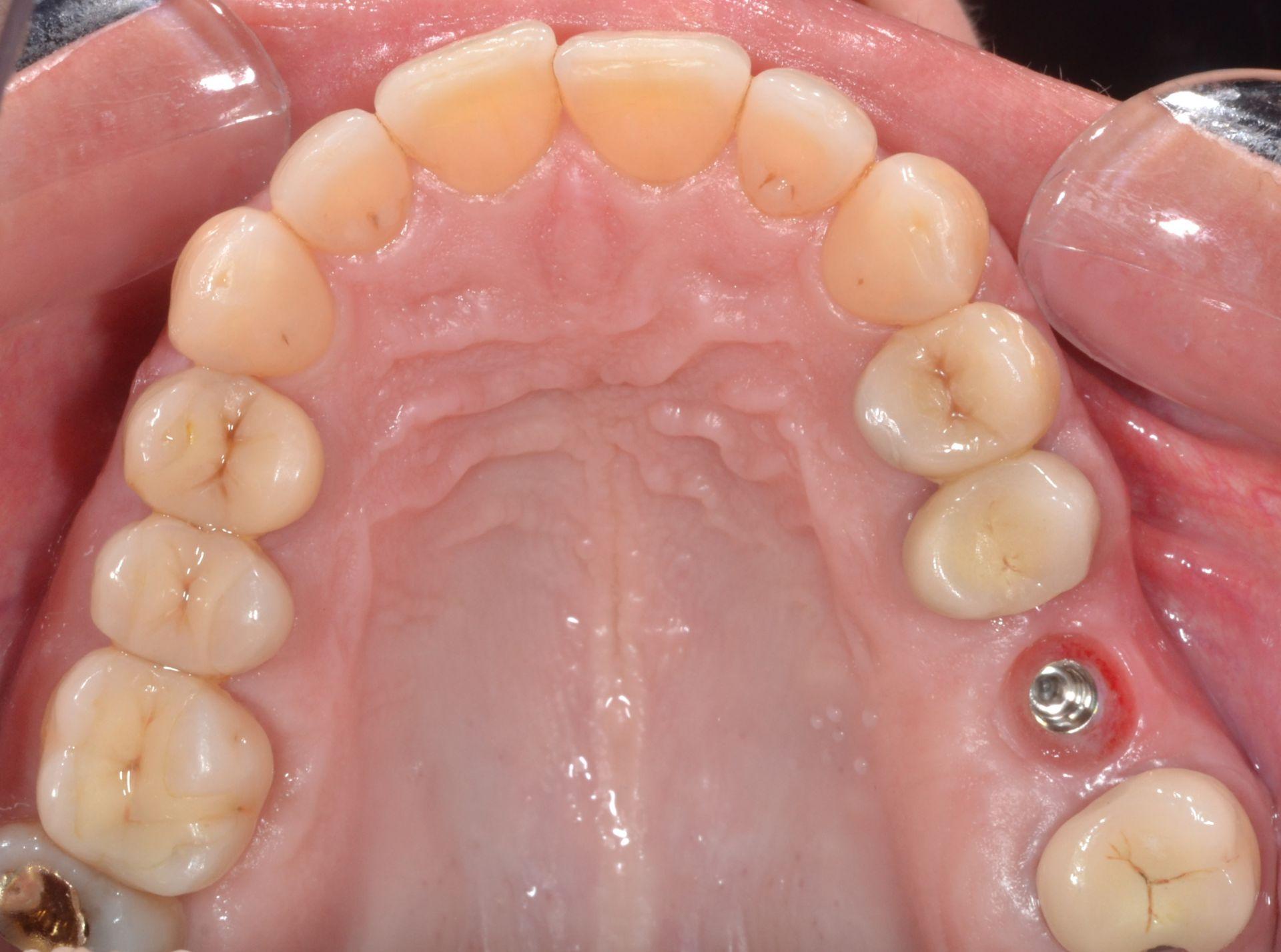 Implant dentaire : pourquoi s'orienter vers cette solution ?